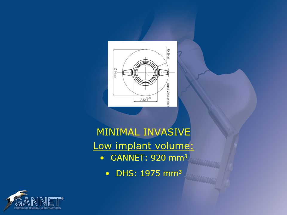 MINIMAL INVASIVE Low implant volume: GANNET: 920 mm 3 DHS: 1975 mm 3