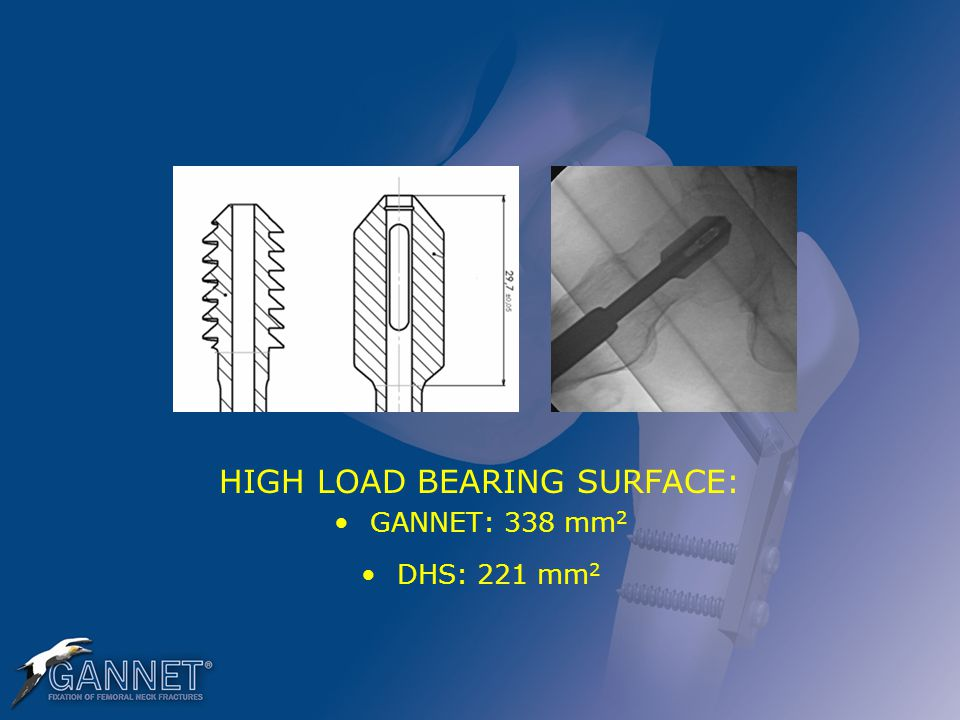 HIGH LOAD BEARING SURFACE: GANNET: 338 mm 2 DHS: 221 mm 2