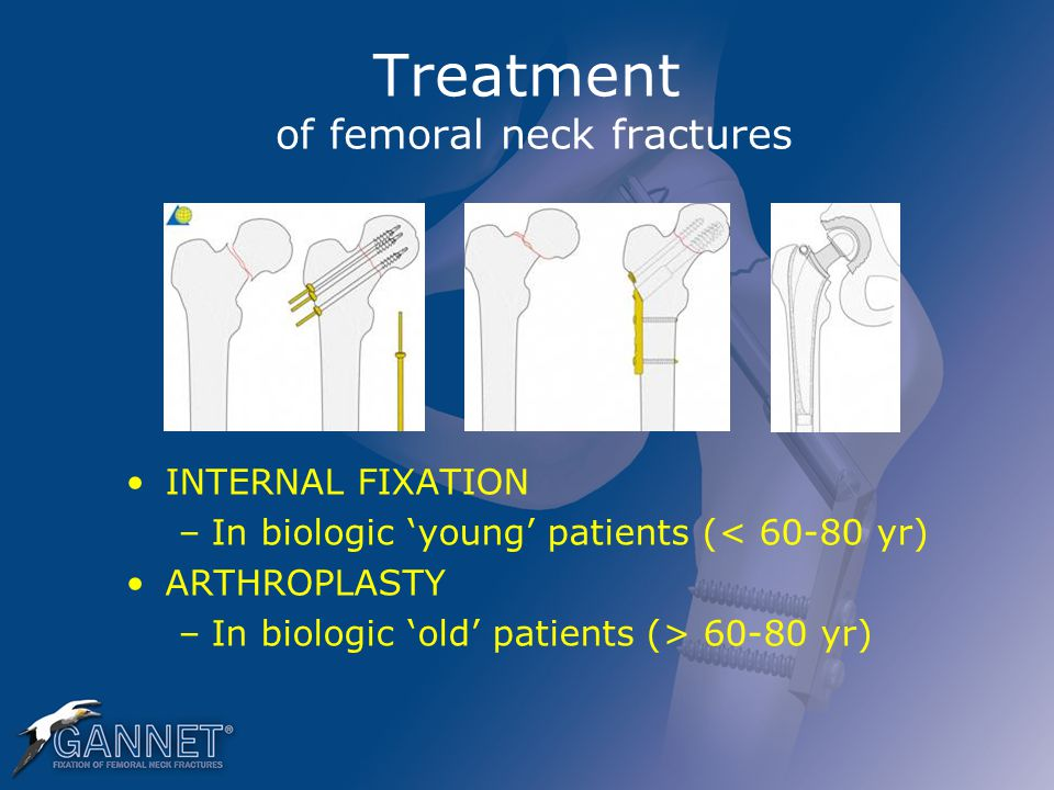 Treatment of femoral neck fractures INTERNAL FIXATION –In biologic 'young' patients (< 60-80 yr) ARTHROPLASTY –In biologic 'old' patients (> 60-80 yr)