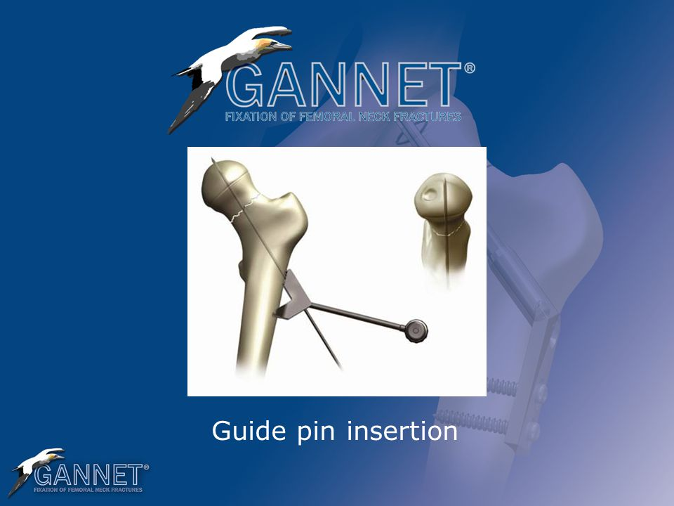 Guide pin insertion