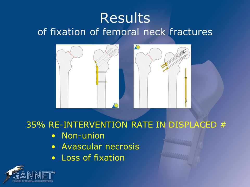 Results of fixation of femoral neck fractures 35% RE-INTERVENTION RATE IN DISPLACED # Non-union Avascular necrosis Loss of fixation
