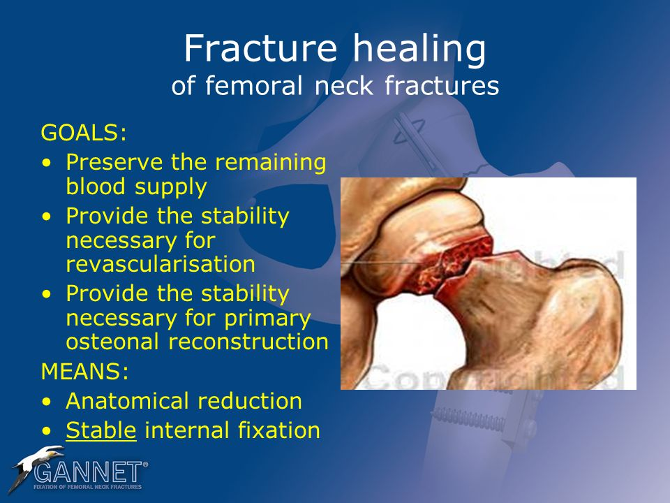 Fracture healing of femoral neck fractures GOALS: Preserve the remaining blood supply Provide the stability necessary for revascularisation Provide th
