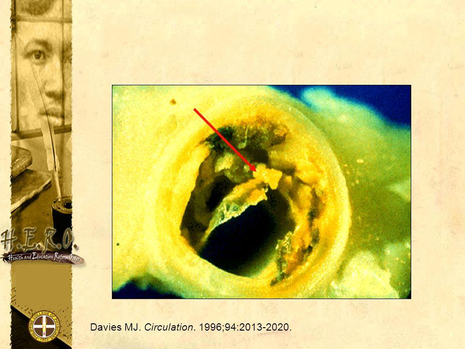Davies MJ. Circulation. 1996;94:2013-2020.