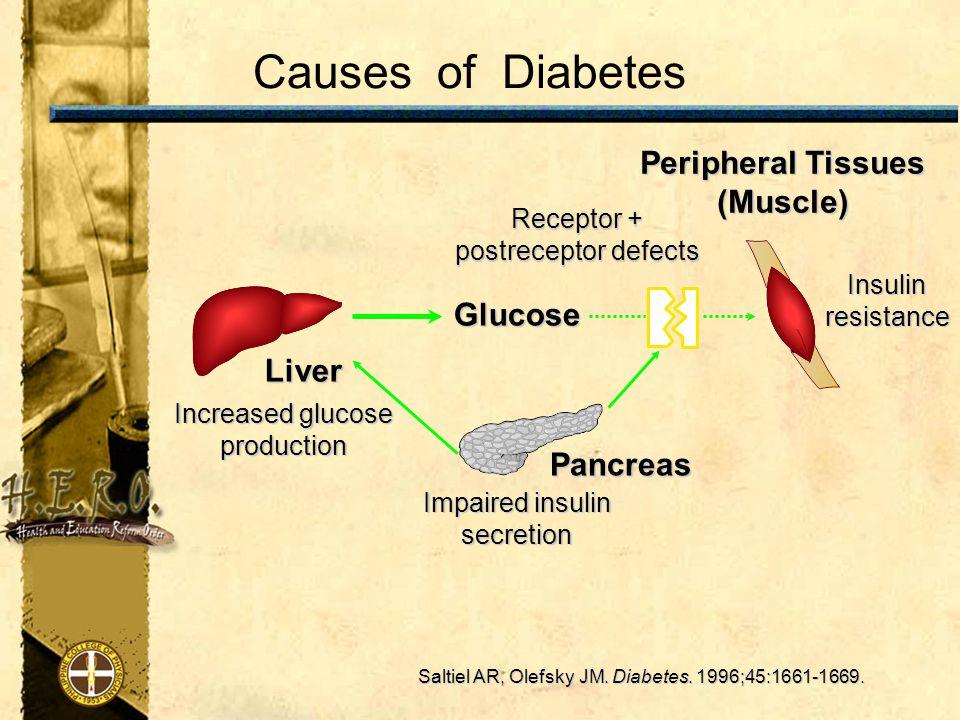 Causes of Diabetes Saltiel AR, Olefsky JM. Diabetes.