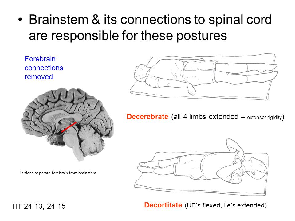Decerebrate Posture Gamma loop HT 24-10, 24-11 Lesion A –Intercollicular section – ( between sup & inferior) –Upper limbs extended –Lower limbs extended –Vestibulospinal system unaffected by lesion no cortical input –Flexor inactivated Flexor motor neuron receives input from rubrospinal tract BUT, that tract has been cut Same true for corticospinal tract –Posture must be result of reticulospinal system Excitatory part is being driven but inhibitory is not –Alpha motor neurons are indeed activated by gamma motor neurons via gamma loop Hyper-extension Lesion