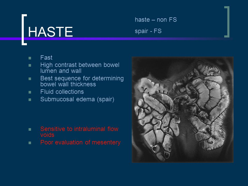 TrueFISP Fast Relatively motion insensitive High contrast between small bowel lumen and bowel walls Homogeneous endoluminal opacification Good mesenteric anatomy (LAN, comb sign, vessels) Susceptibility artifacts from intraluminal air Chemical shift artifacts – black boundary  Occurs in pixels with fat & water  Improved with FS trufi space - pelvis
