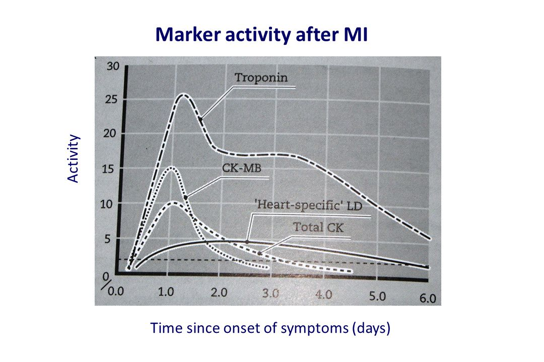 Marker activity after MI Time since onset of symptoms (days) Activity