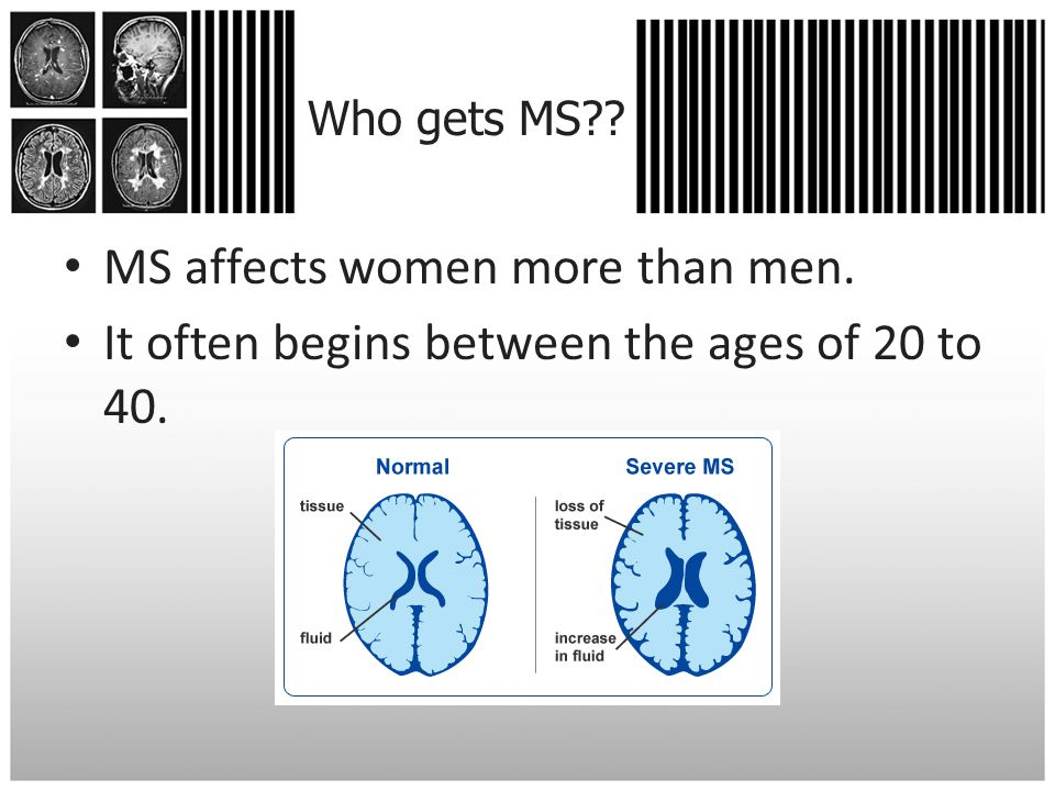 Who gets MS MS affects women more than men. It often begins between the ages of 20 to 40.