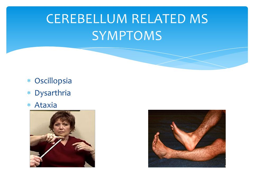  Oscillopsia  Dysarthria  Ataxia CEREBELLUM RELATED MS SYMPTOMS
