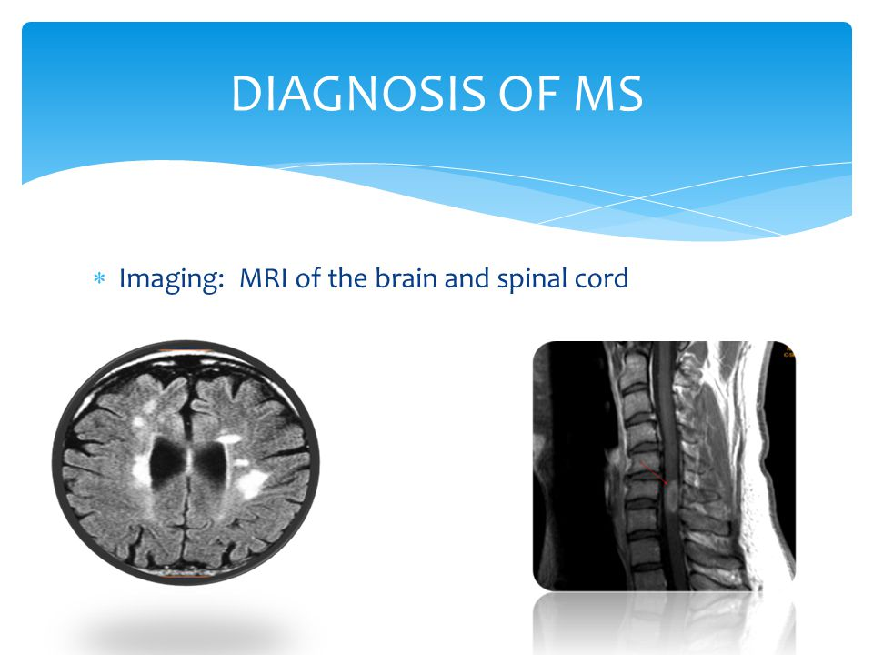  Imaging: MRI of the brain and spinal cord DIAGNOSIS OF MS