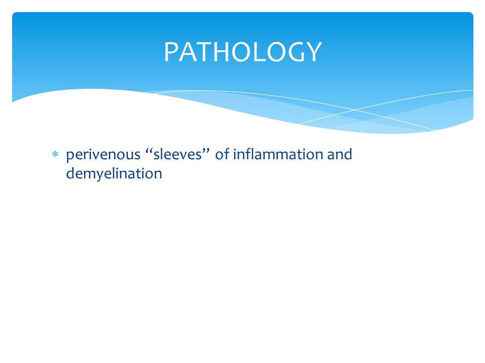  perivenous ''sleeves'' of inflammation and demyelination PATHOLOGY