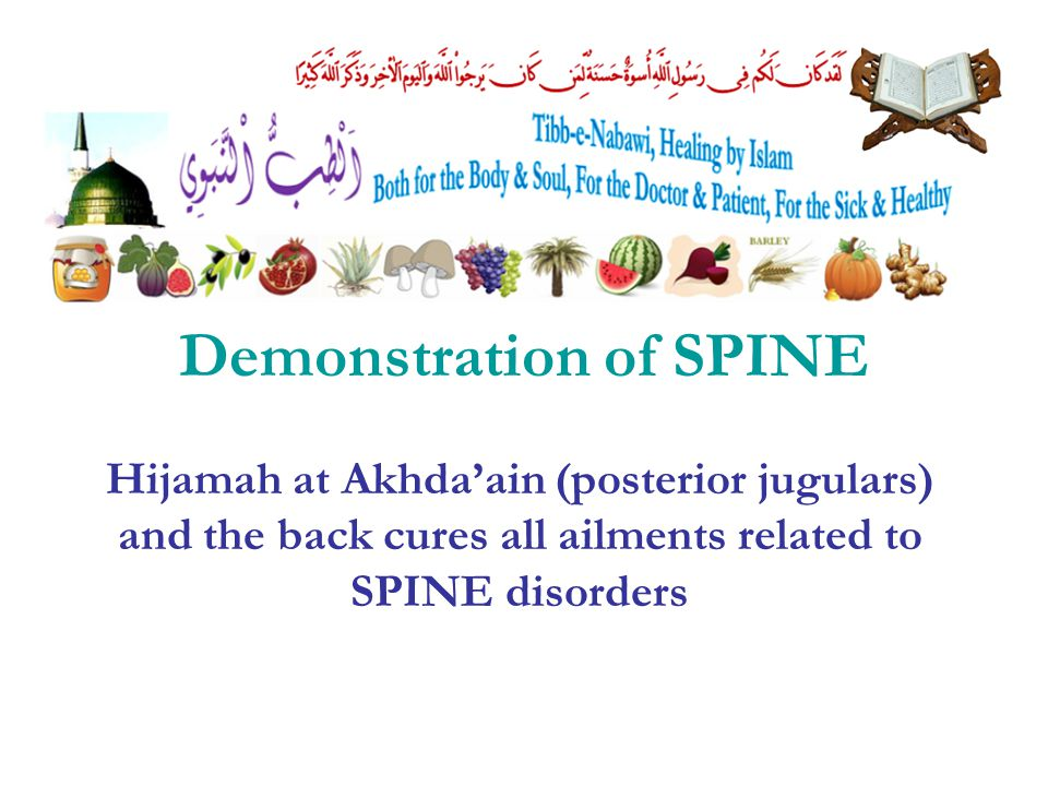 Demonstration of SPINE Hijamah at Akhda'ain (posterior jugulars) and the back cures all ailments related to SPINE disorders
