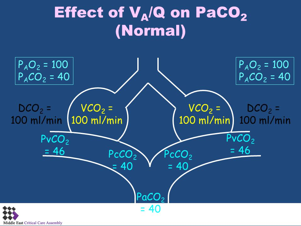 Effect of V A /Q on PaCO 2 (Normal) VCO 2 = 100 ml/min PcCO 2 = 40 PaCO 2 = 40 PcCO 2 = 40 PvCO 2 = 46 PvCO 2 = 46 DCO 2 = 100 ml/min DCO 2 = 100 ml/m