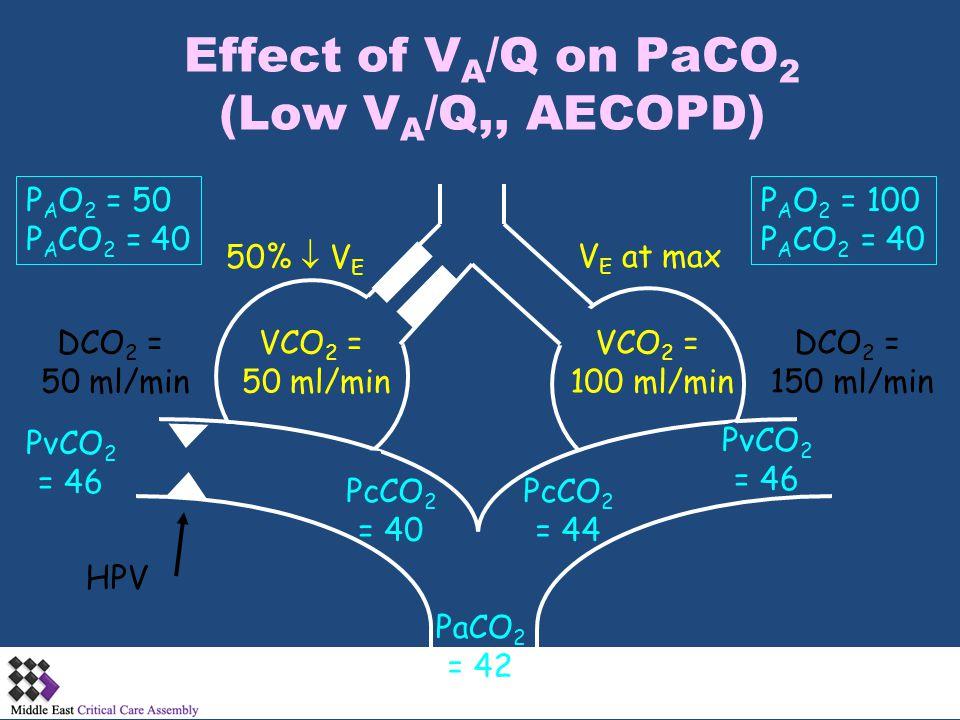 Effect of V A /Q on PaCO 2 (Low V A /Q,, AECOPD) PcCO 2 = 44 PaCO 2 = 42 PcCO 2 = 40 PvCO 2 = 46 PvCO 2 = 46 DCO 2 = 50 ml/min HPV V E at max50%  V E