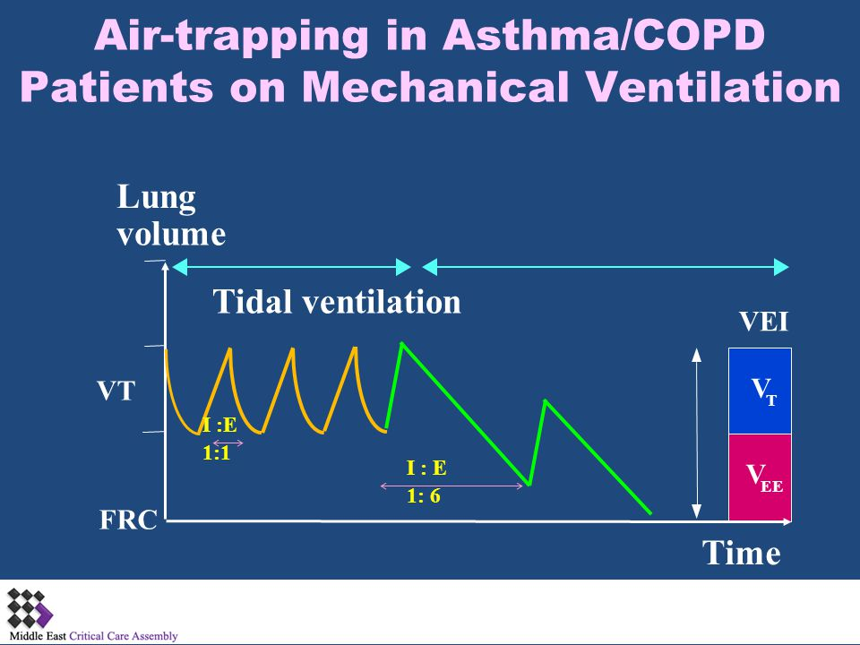 Tidal ventilation Lung volume VT FRC V T V EE Time VEI I :E 1:1 I : E 1: 6 Air-trapping in Asthma/COPD Patients on Mechanical Ventilation