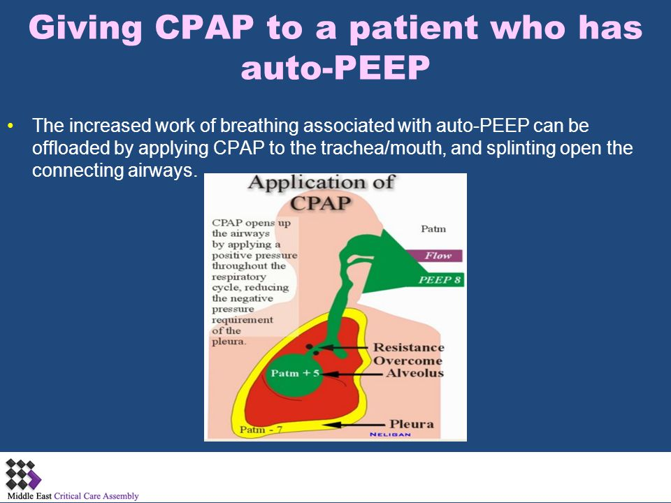 Giving CPAP to a patient who has auto-PEEP The increased work of breathing associated with auto-PEEP can be offloaded by applying CPAP to the trachea/