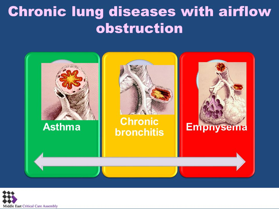 Chronic lung diseases with airflow obstruction Asthma Chronic bronchitis Emphysema