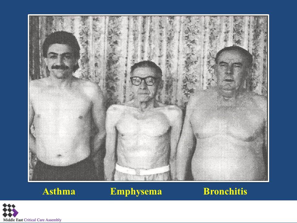 Asthma Emphysema Bronchitis