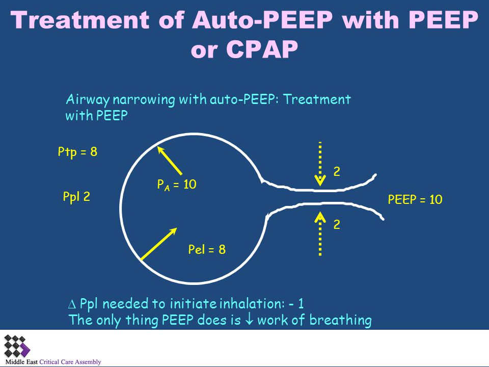 Treatment of Auto-PEEP with PEEP or CPAP Airway narrowing with auto-PEEP: Treatment with PEEP P A = 10 PEEP = 10 Ppl 2 Pel = 8  Ppl needed to initiat