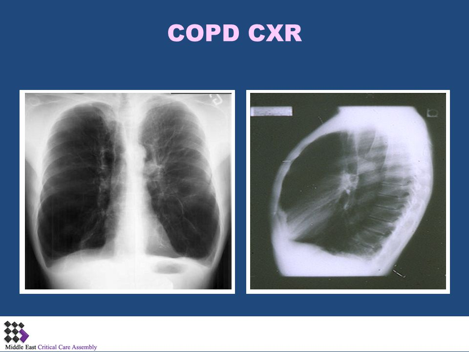 Near fatal asthma Phenotypes Gradual Onset Sudden Onset