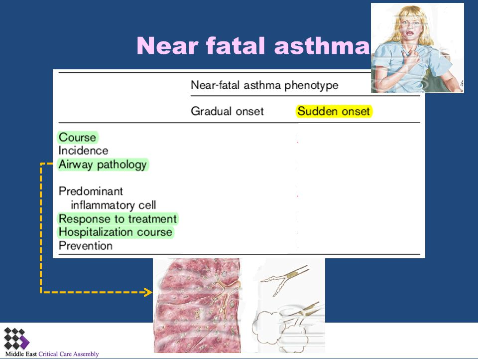 Mechanical Venitlation of COPD & Asthma Exacerbations Objectives  Pathophysiology -PaCO 2 dederminants-Gas trapping -Work of breathing-Auto-PEEP  NIPPV -IPAP -EPAP  Mechanical ventilation -FIO 2 -PEEP -V T