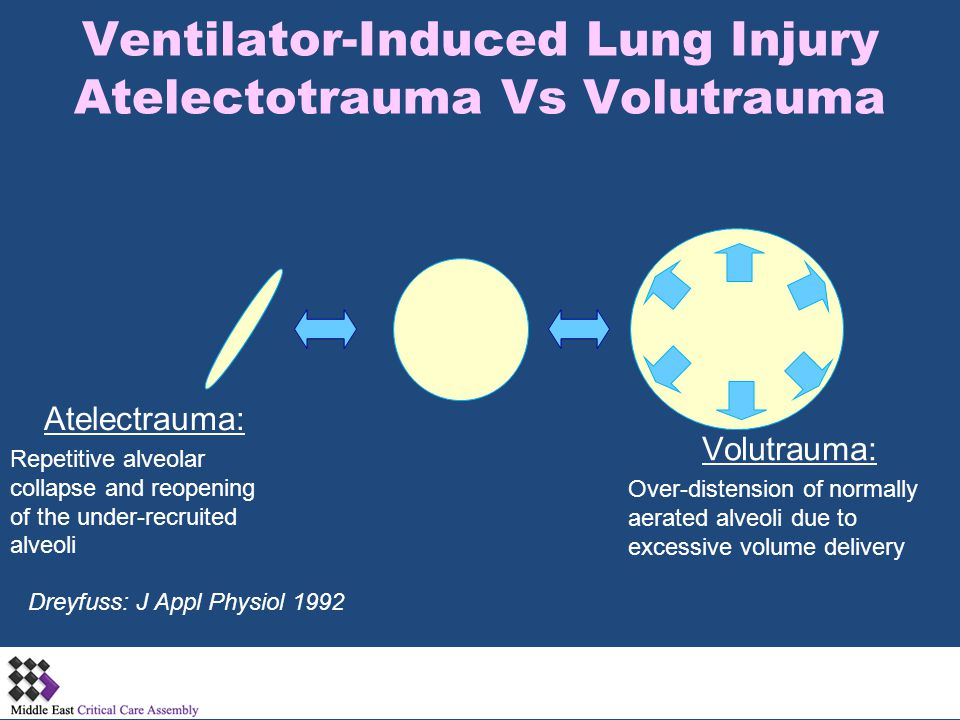 Barotrauma-Pathophysiology Some alveoli become more distended than others.