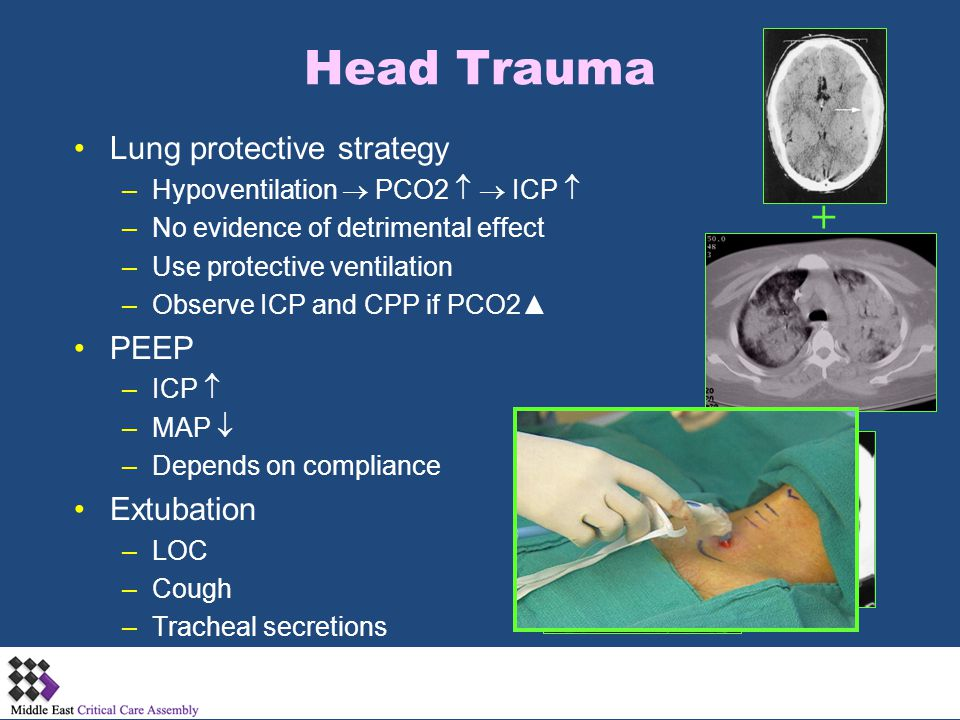 Head Trauma Lung protective strategy –Hypoventilation  PCO2   ICP  –No evidence of detrimental effect –Use protective ventilation –Observe ICP and