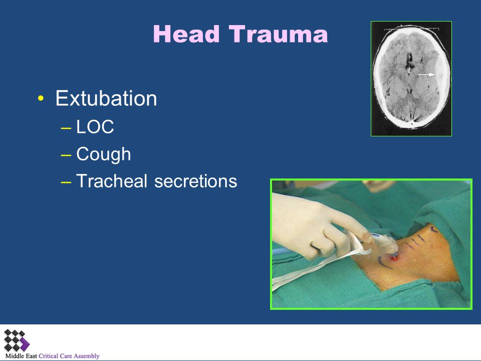 Head Trauma Extubation –LOC –Cough –Tracheal secretions