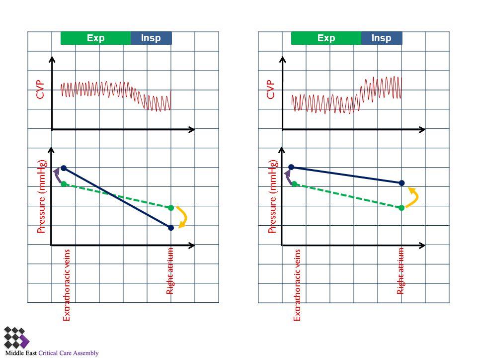ExpInsp CVP Pressure (mmHg) Extrathoracic veins Right atrium ExpInsp CVP Pressure (mmHg) Extrathoracic veins Right atrium