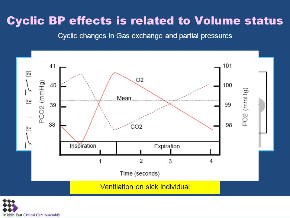 Cyclic BP effects is related to Volume status Ventilation on sick individual Cyclic changes in Gas exchange and partial pressures