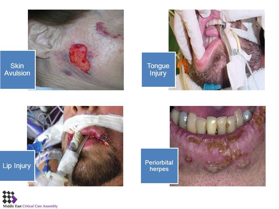 Skin Avulsion Tongue Injury Lip Injury Periorbital herpes