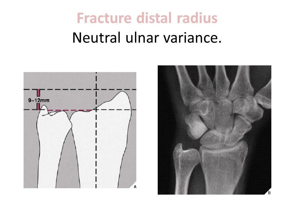 Fracture distal radius Neutral ulnar variance.