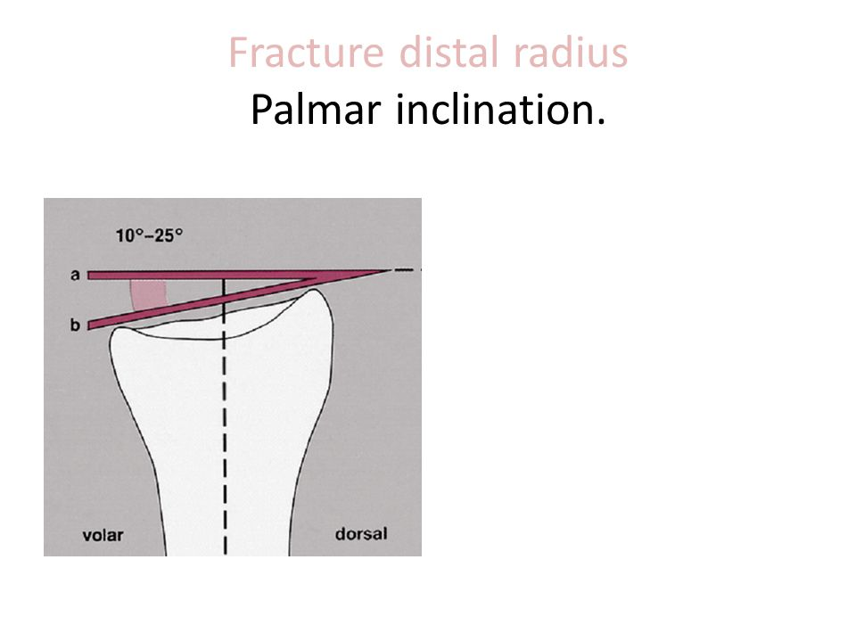 Fracture distal radius Palmar inclination.