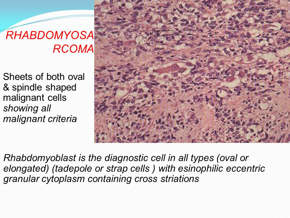 Rhabdomyoblast is the diagnostic cell in all types (oval or elongated) (tadepole or strap cells ) with esinophilic eccentric granular cytoplasm contai