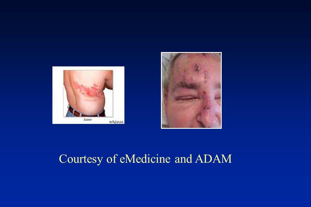 Courtesy of eMedicine and ADAM
