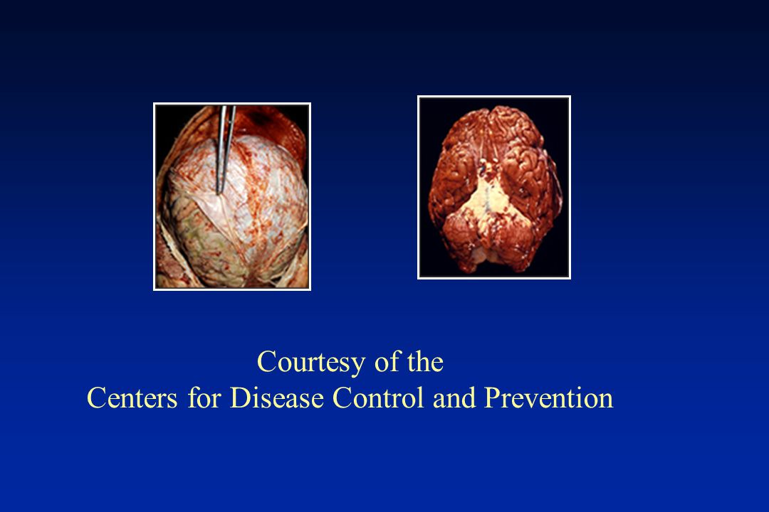 Courtesy of the Centers for Disease Control and Prevention