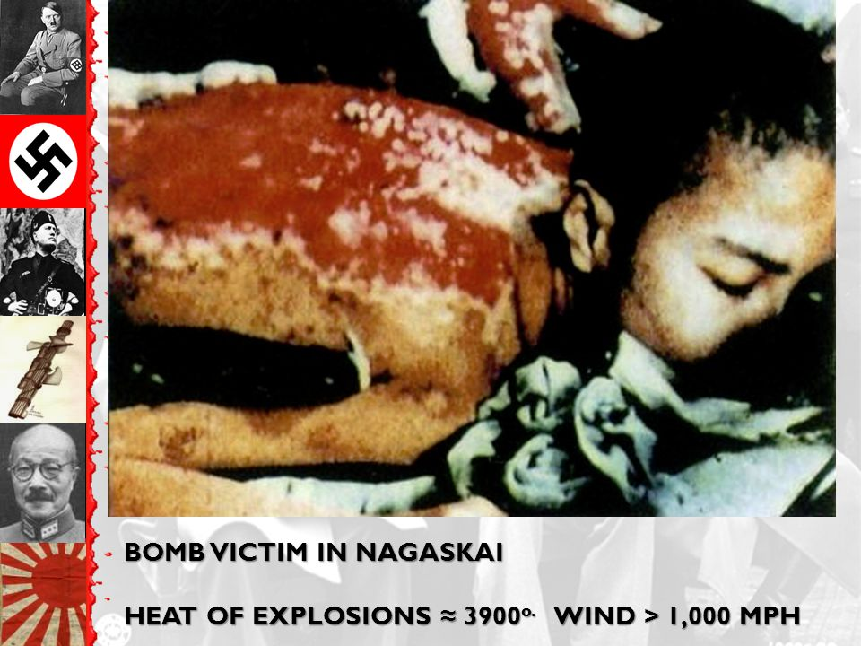BOMB VICTIM IN NAGASKAI HEAT OF EXPLOSIONS ≈ 3900 o. WIND > 1,000 MPH