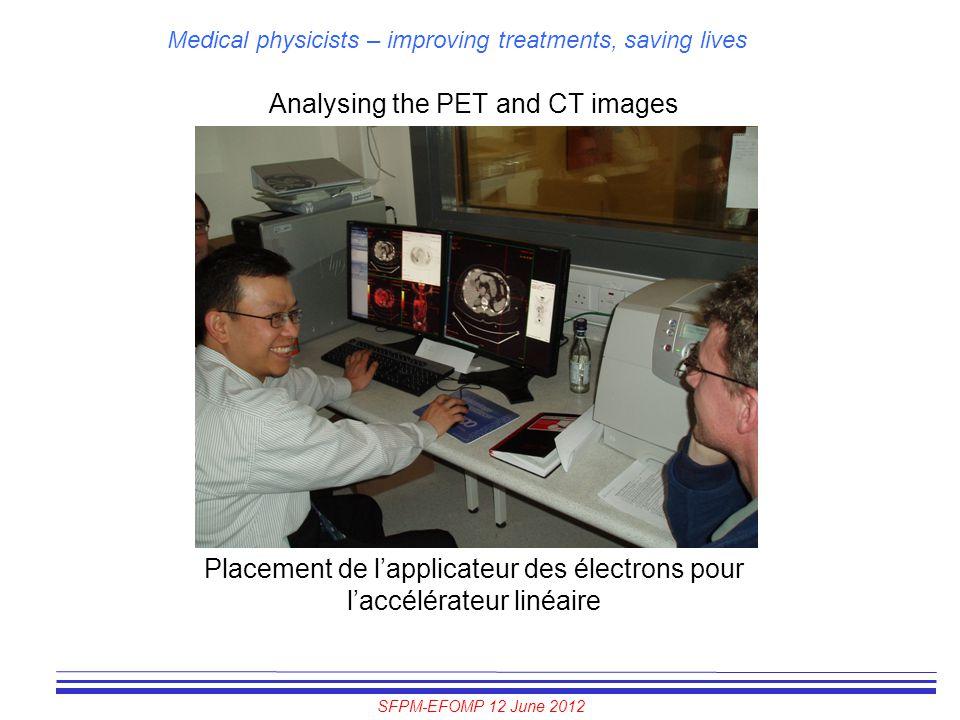 SFPM-EFOMP 12 June 2012 Medical physicists – improving treatments, saving lives Analysing the PET and CT images Placement de l'applicateur des électro