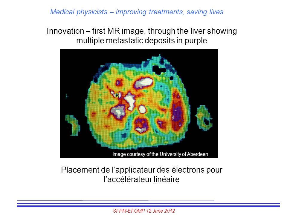 SFPM-EFOMP 12 June 2012 Medical physicists – improving treatments, saving lives Innovation – first MR image, through the liver showing multiple metast