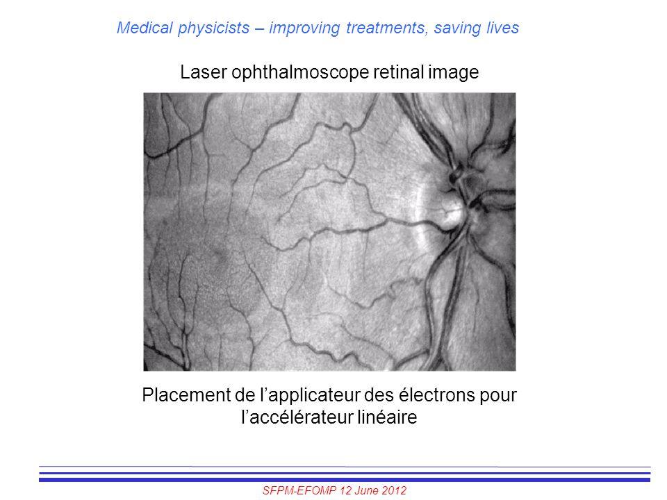 SFPM-EFOMP 12 June 2012 Medical physicists – improving treatments, saving lives Laser ophthalmoscope retinal image Placement de l'applicateur des élec
