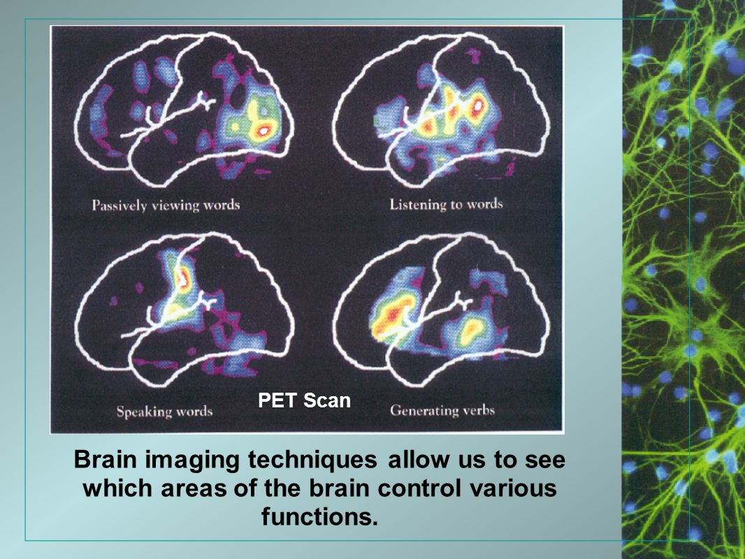 Brain imaging techniques allow us to see which areas of the brain control various functions. PET Scan
