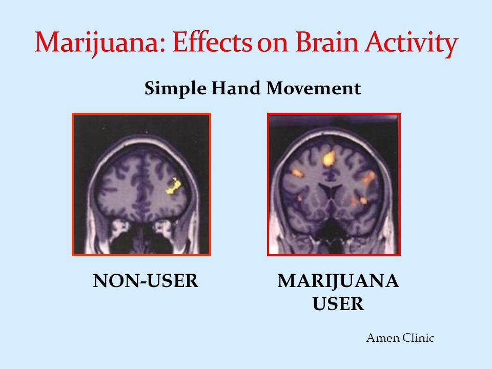 NON-USERMARIJUANA USER Amen Clinic Simple Hand Movement
