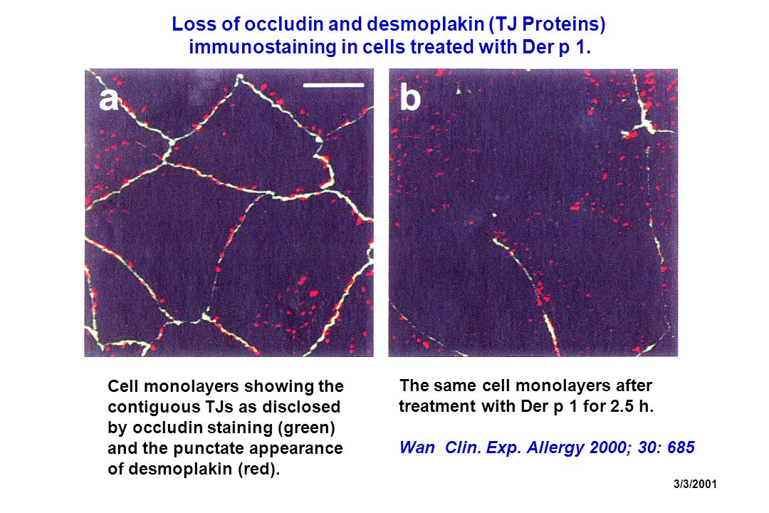 3/3/2001 Cell monolayers showing the contiguous TJs as disclosed by occludin staining (green) and the punctate appearance of desmoplakin (red).
