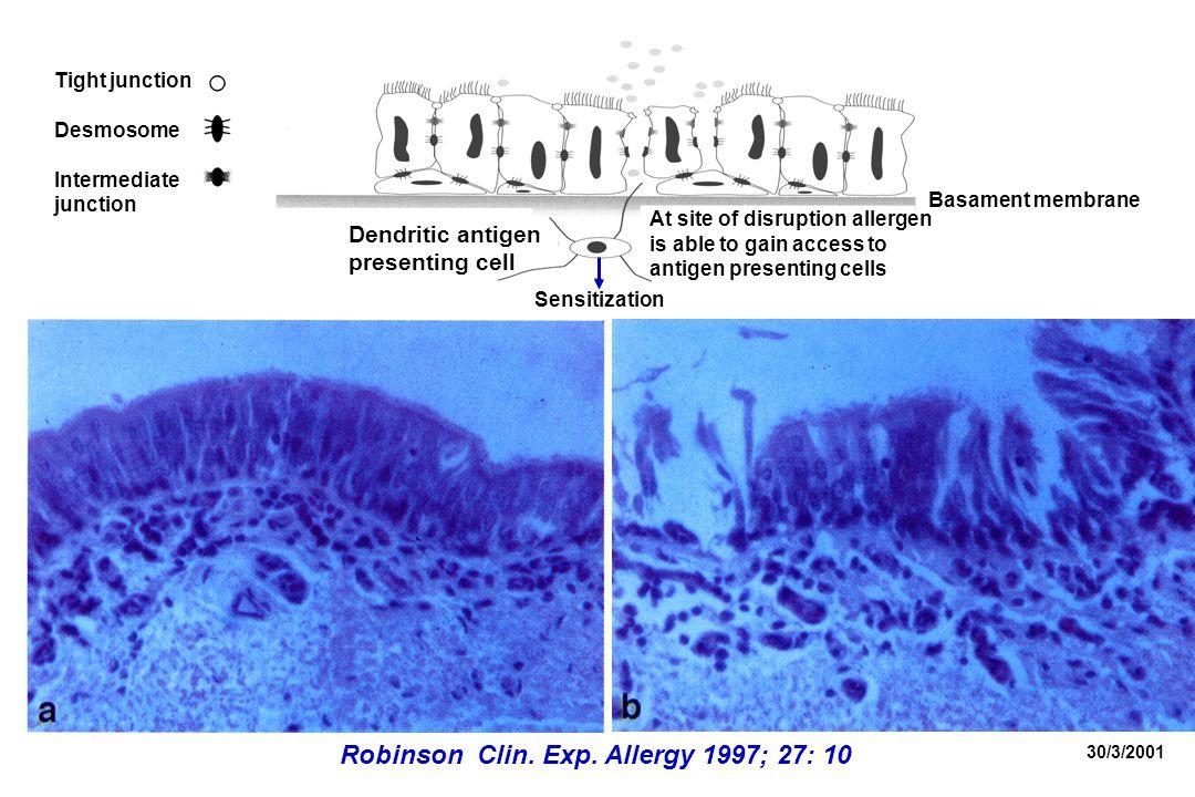 30/3/2001 Robinson Clin. Exp.