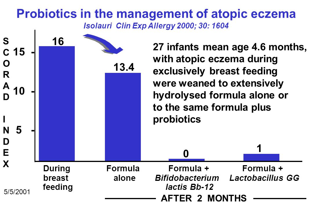 Probiotics in the management of atopic eczema Isolauri Clin Exp Allergy 2000; 30: 1604 SCORADINDEXSCORADINDEX 15 - 10 - 5 - During Formula Formula + Formula + breast alone Bifidobacterium Lactobacillus GG feeding lactis Bb-12 AFTER 2 MONTHS 5/5/2001 16 13.4 0 1 27 infants mean age 4.6 months, with atopic eczema during exclusively breast feeding were weaned to extensively hydrolysed formula alone or to the same formula plus probiotics