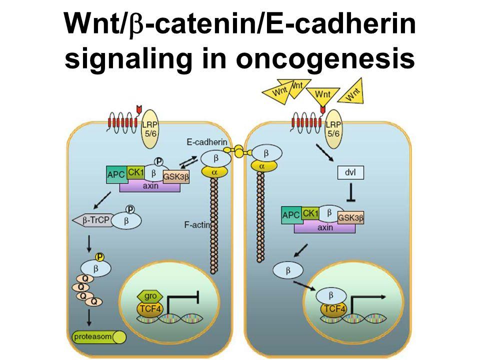 Wnt/  -catenin/E-cadherin signaling in oncogenesis