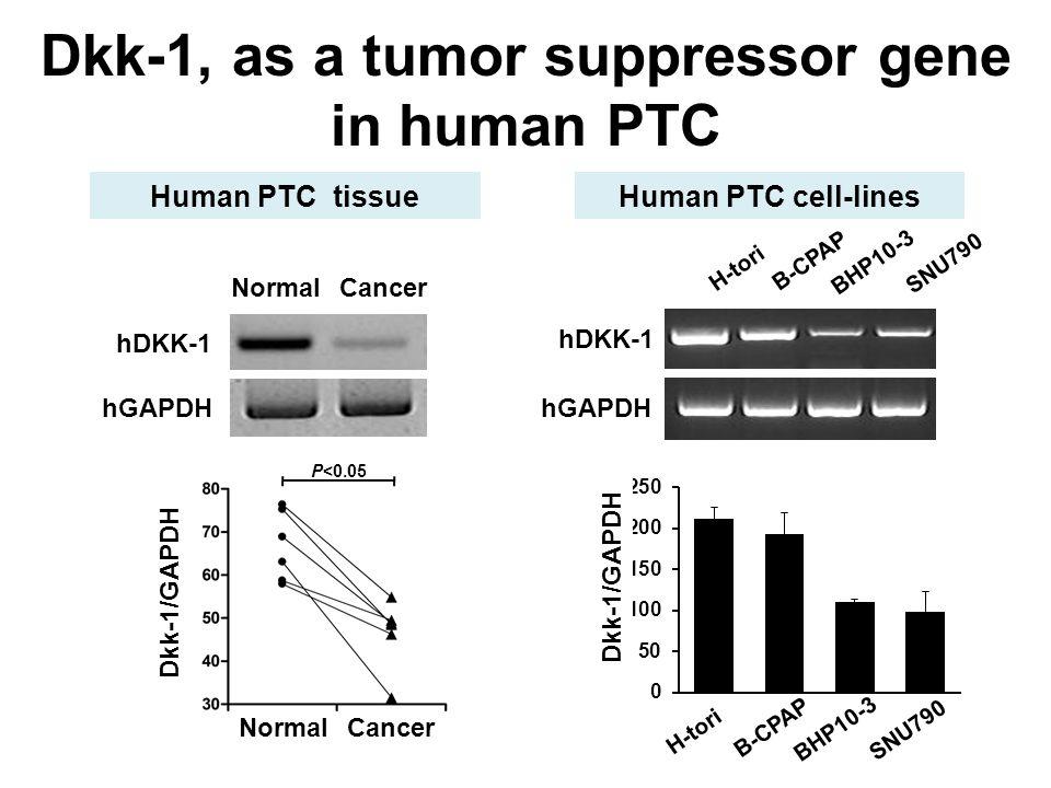 hDKK-1 hGAPDH P<0.05 Dkk-1/GAPDH NormalCancer Dkk-1, as a tumor suppressor gene in human PTC H-tori B-CPAP BHP10-3 SNU790 Dkk-1/GAPDH hDKK-1 hGAPDH H-tori B-CPAP BHP10-3 SNU790 Human PTC tissueHuman PTC cell-lines NormalCancer