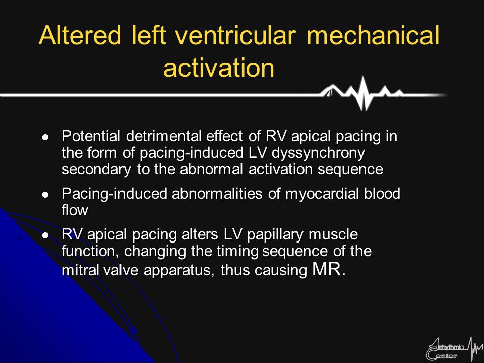 His Bundle Pacing His bundle pacing has been shown to result in the same QRS duration and pressure development as sinus rhythm and atrial pacing and better hemodynamics than RV apex pacing.