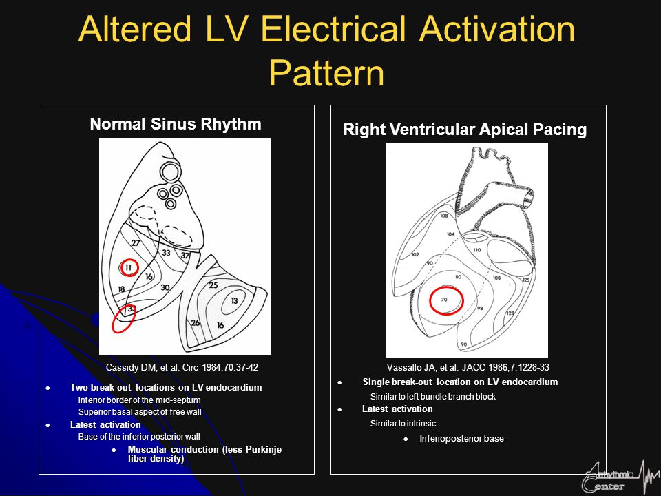 Altered LV Electrical Activation Pattern Two break-out locations on LV endocardium Two break-out locations on LV endocardium Inferior border of the mi