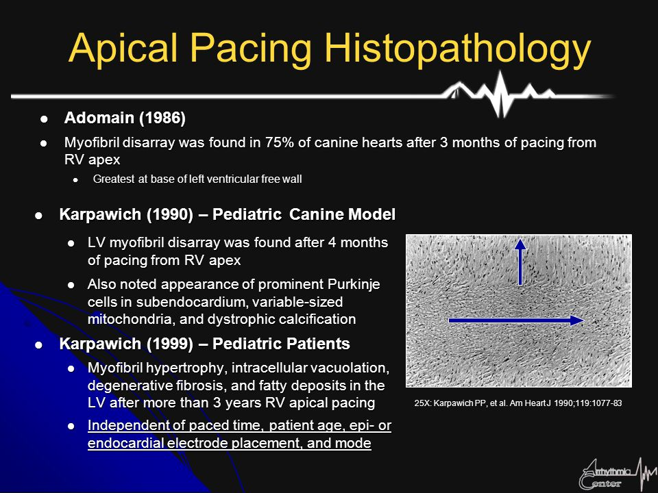 Apical Pacing Histopathology Karpawich (1990) – Pediatric Canine Model Karpawich (1990) – Pediatric Canine Model LV myofibril disarray was found after